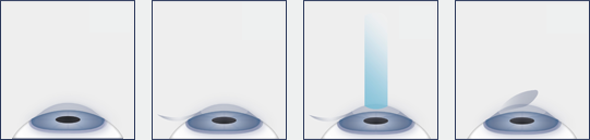 Lasik-Diagram-NoCaptions